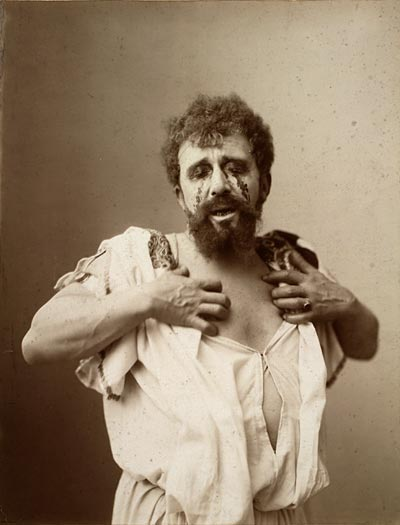 Image of Oedipus with bleeding eyes
